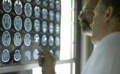 Como Realizar Exames de Ressonância Magnética? Aplicação em Neurorradiologia